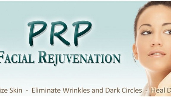 prp1-1200x565